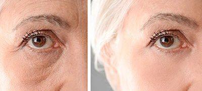 Botox-rejovenation