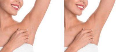 Permanet Hair removal girl image
