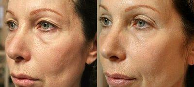 Total Derm Skin Tightening treatment